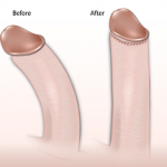 Is A Curved-Down Penis Better For Sex?